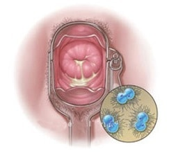 gonorreia-sintomas-mulher