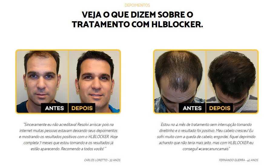 Antes e depois Hairloss Blocker